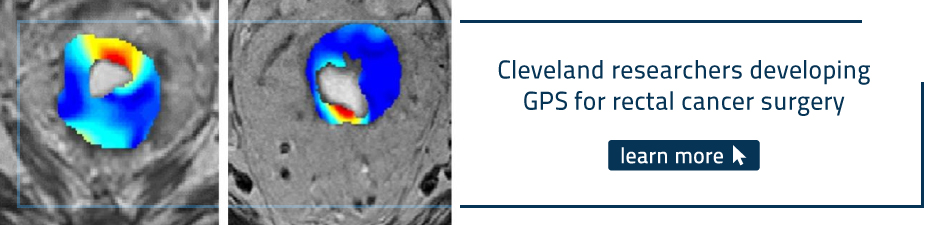 GPS for rectal cancer surgery