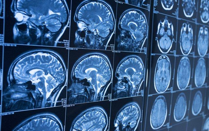 MRI images of brain
