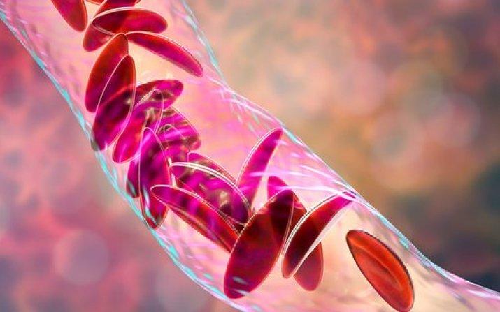 rendering of sickle blood cells