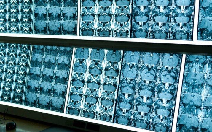 images of MRI scans